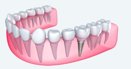 Small titanium-based screws