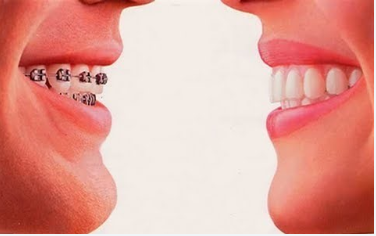 Invisalign Orthodontic